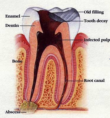 Root canal treatment in Dubai